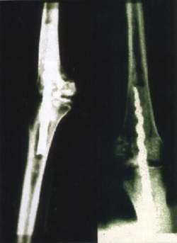 protesi.JPG