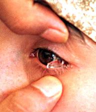 Lacrime di cristallo