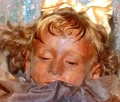 Bambina mummificata apre gli occhi